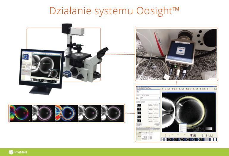 System Oosight